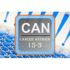 Cancer Antigen ELISA - CA 15-3