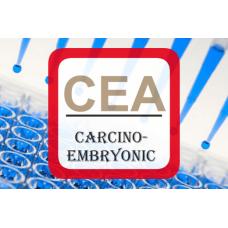 Carcinoembryonic Antigen ELISA - CEA