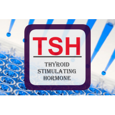 Thyroid Stimulating Hormone ELISA - Ultra-Sensitive TSH (U-TSH)