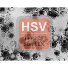 Herpes Simplex Virus (1, 2) Antibody (pAb) - Rabbit
